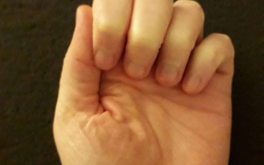hands with fingers curled up due to RSI